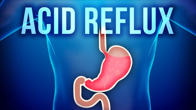 Acid Reflux Woes and Recommendations - KNBN NewsCenter1